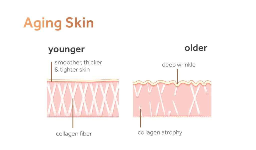 Absolute Collagen review - skin ageing diagram